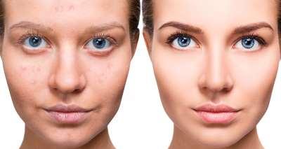 Что нужно знать о процедуре шлифовки лица лазером