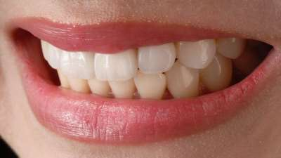 Эстетическая реставрация зубов в клинике «А-ПЛОМБ»