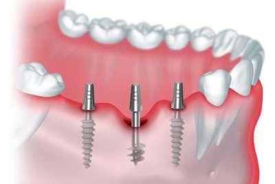 Протезирование зубов — восстановление функций челюсти