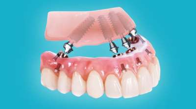 Методика имплантации зубов all on 4