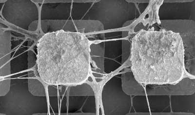Ученые начнут внедрять живые нейроны в компьютерные микрочипы
